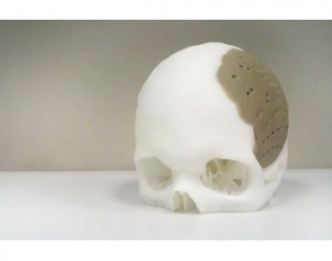 OPM's 3D printing OsteoFab receives USFDA clearance for implants